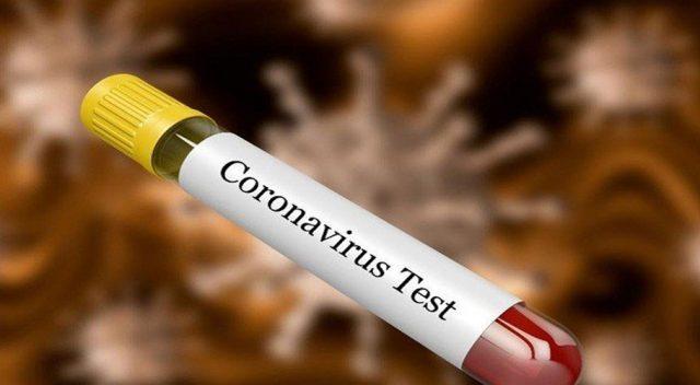 NUST develops testing kits for detecting coronavirus