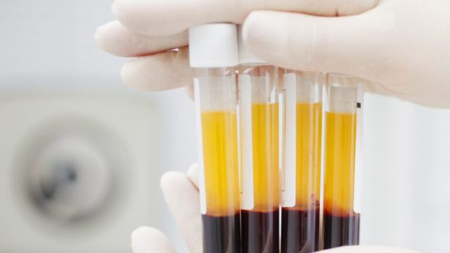 PAKISTAN begins clinical trials of coronavirus blood plasma treatment